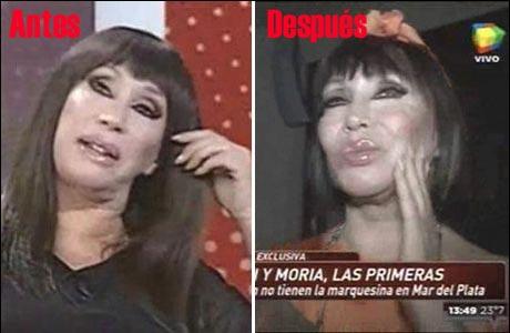 Moria Casán se hizo un shock antiage en la cara: mirá el resultado