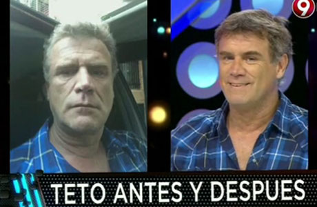 Teto Medina se realizó una cirugía facial y mostró los resultados en TV: ¡mirá cómo le quedó!