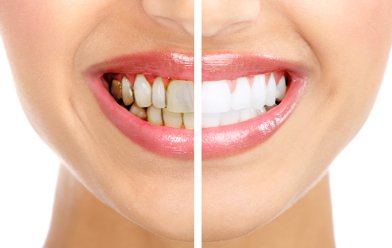 Salud| Los alimentos que manchan tus dientes
