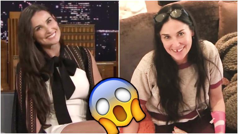 Demi Moore contó el extraño motivo por el que perdió dos dientes