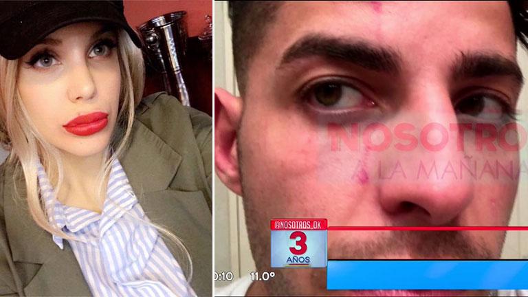 Las cicatrices de Lhoan después de su fuerte discusión por celos con Charlotte Caniggia