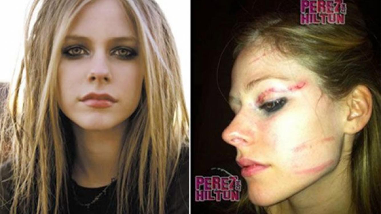 Avril Lavingne antes y después de la brutal agresión. (Foto: Web)