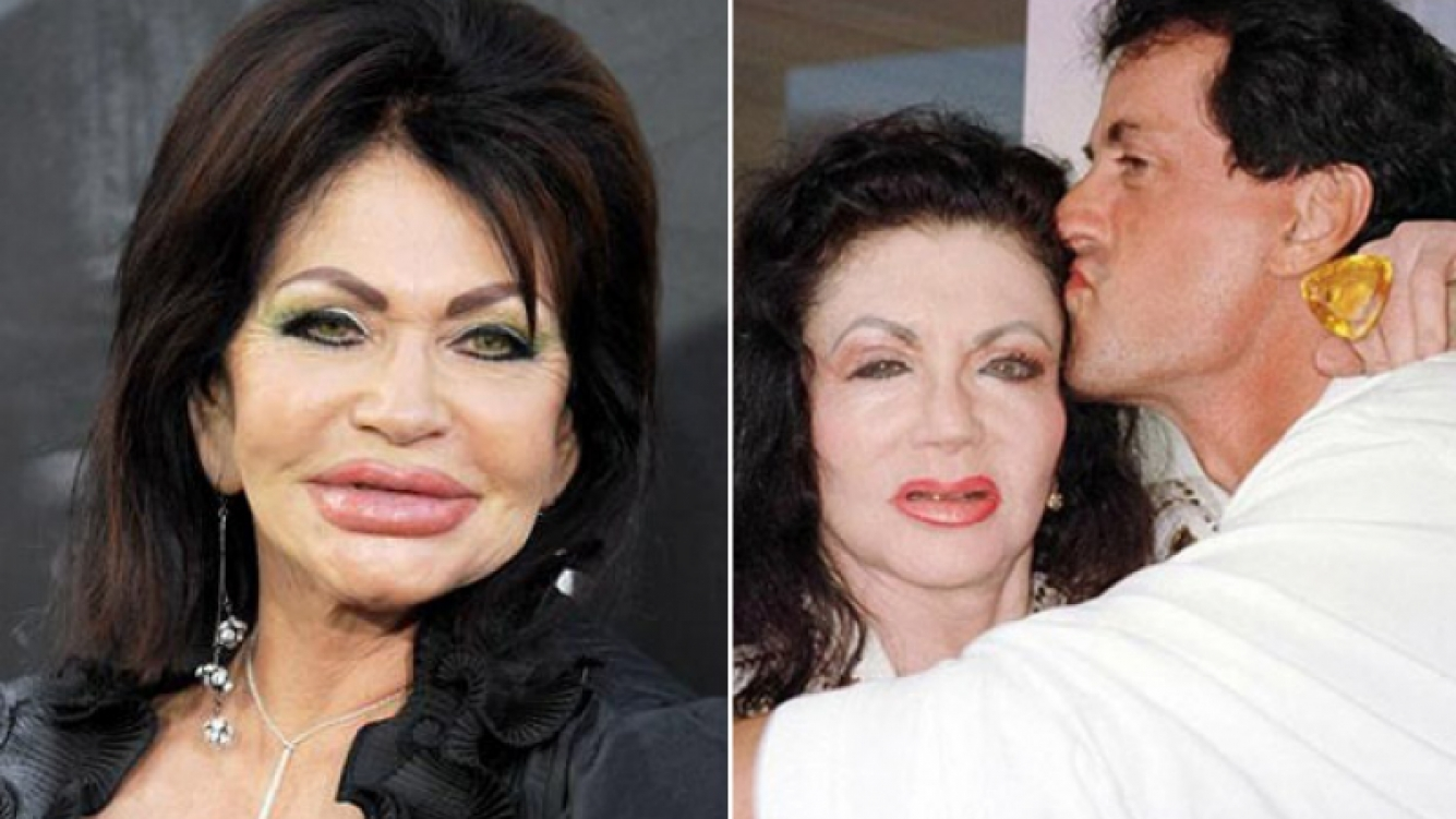 Jackie Stallone. Izquierda: después de la última cirugía. Derecha: antes del nuevo retoque facial, con su hijo Sylvester.