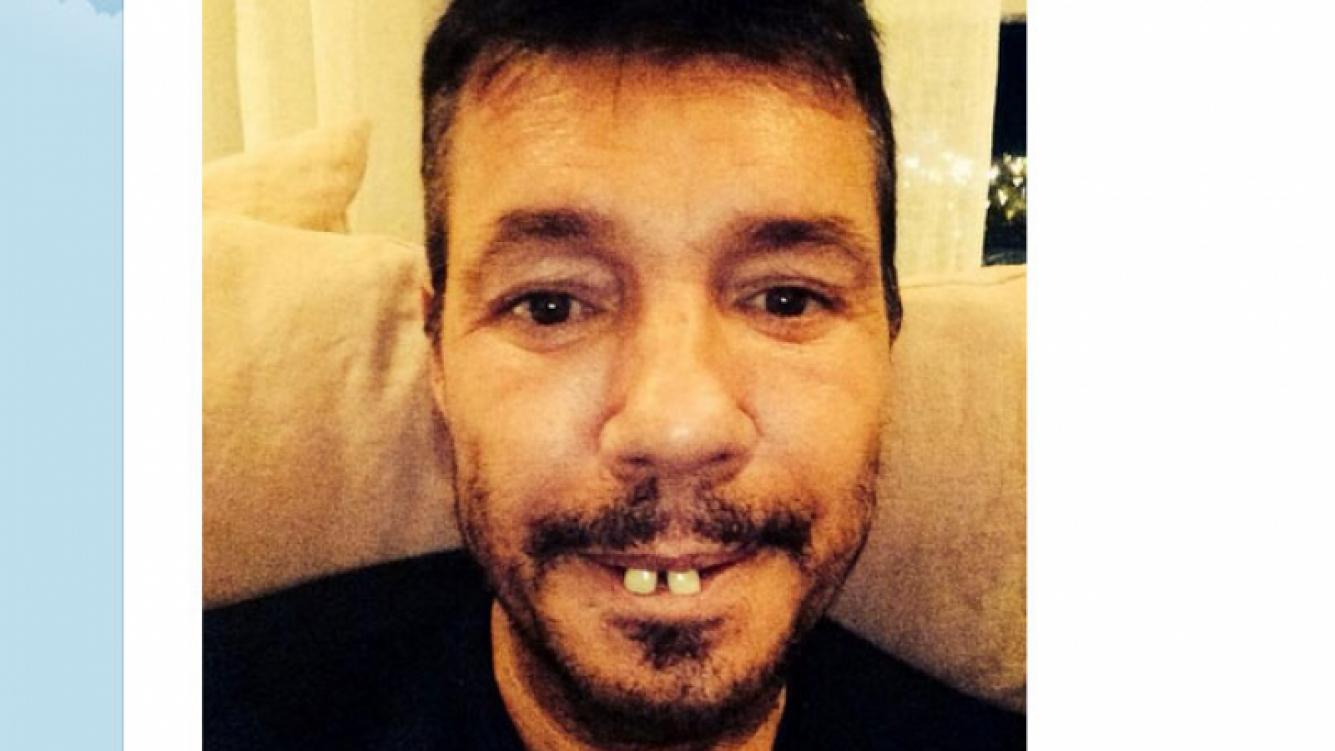 "Marcelo Tinelli bromeó con su nuevo ""look"" tras ir al dentista. (Foto: Twitter)"