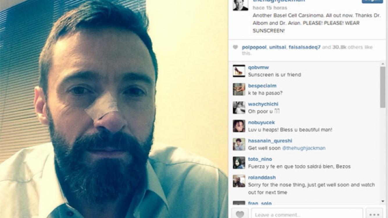 Hugh Jackman y una nueva batalla contra el cáncer de piel. (Foto: Instagram)