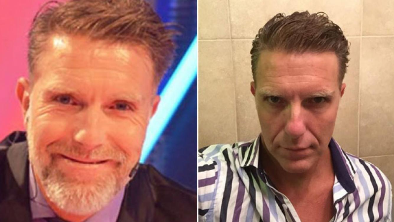 Fantino: su antes y después. (Foto: Web)