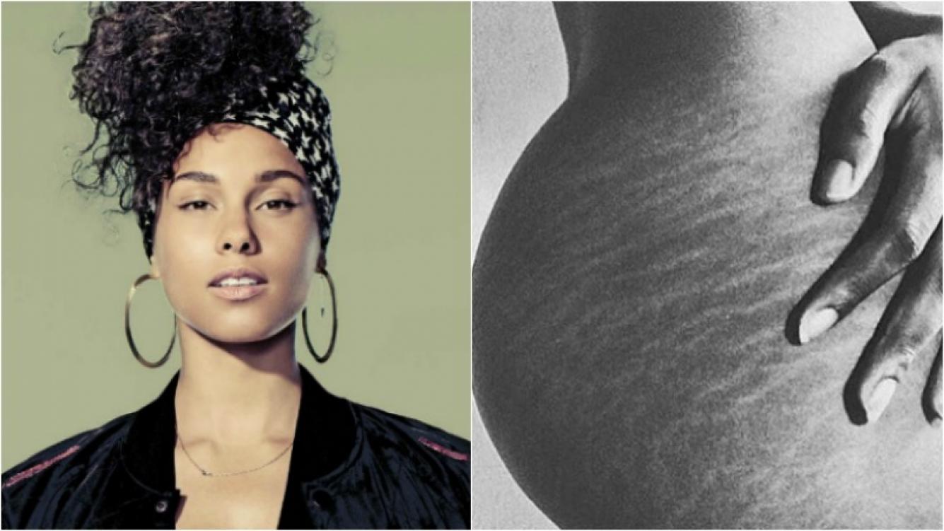 ¡Defensora de la belleza natural! Alicia Keys se animó a mostrar con orgullo sus estrías