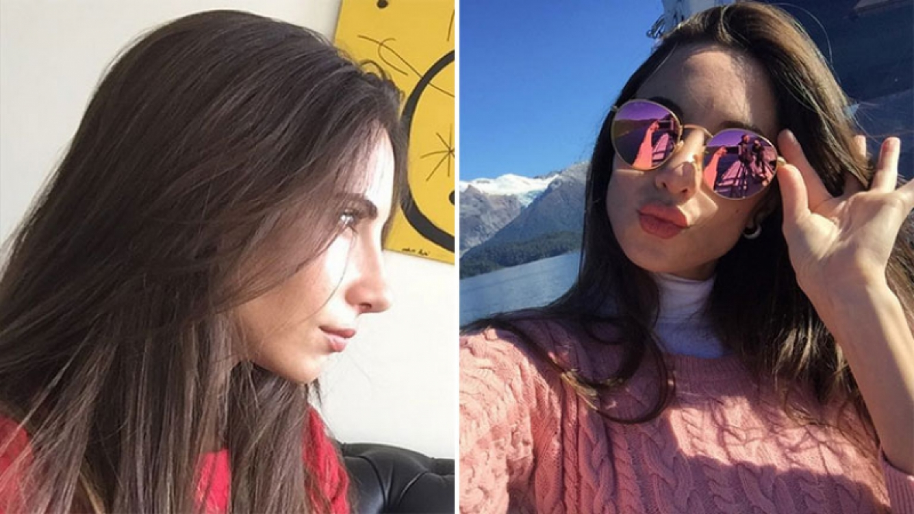 Las selfies de Magui Bravi en las que luce su renovada nariz. Foto: Instagram