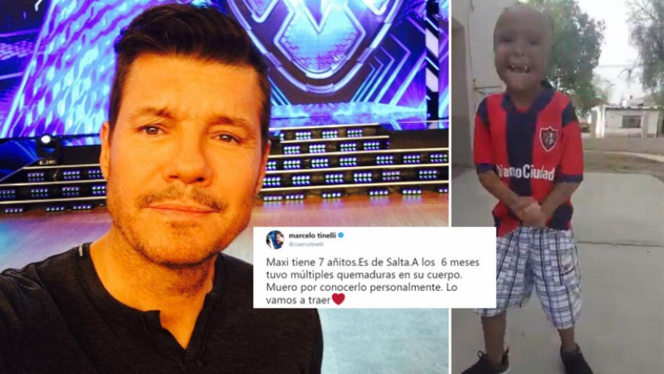 Marcelo Tinelli, conmovido con la dura historia de un niño de siete años: Maxi tuvo múltiples quemaduras; muero por...