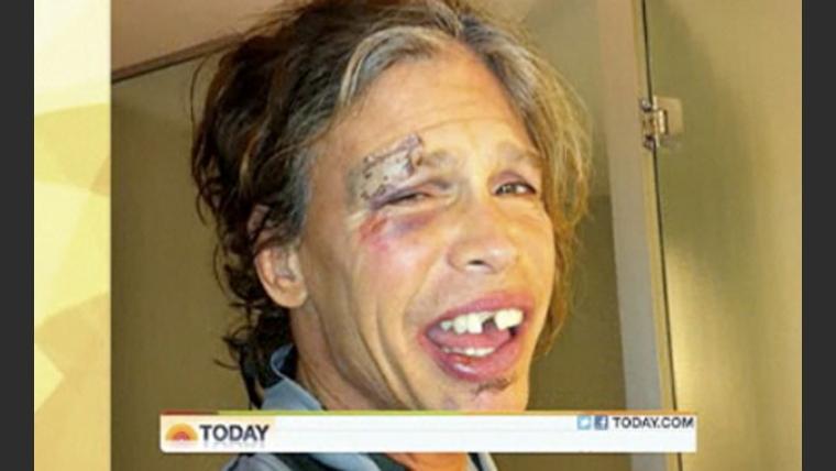 Así quedó Steven Tyler tras su caída en Paraguay (Foto: Web).