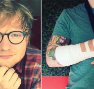 Ed Sheeran chocó con su bicicleta en Londres y peligra su gira por Asia