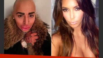 Jordan James Parke busca ser igual a su adorada Kim Kardashian. (Foto: Web)