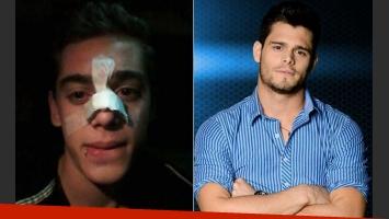 Sergio Celli, tras ser agredido por Lucas Velasco en Combate:
