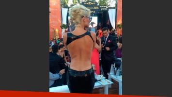 Vicky Xipolitakis mostró con orgullo la marca que le dejó el sol en la espalda. (Foto: Twitter)