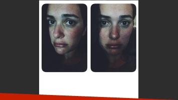 La alergia que mostró Sherezade en Instagram.