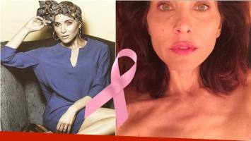 La impactante y valiente foto de Lorena Meritano que muestra su lucha contra el cáncer. Foto: Instagram/ Web