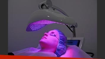 Conocé cómo actúan los tratamientos LED contra el acné