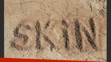 Cuál es la diferencia entre piel seca y deshidratada