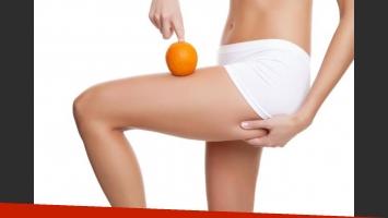 Todo sobre la molesta celulitis: prevenir su aparición se relaciona con mantener hábitos saludables