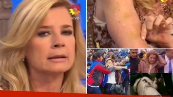Mercedes Ninci mostró los moretones tras ser agredida. Foto: Web