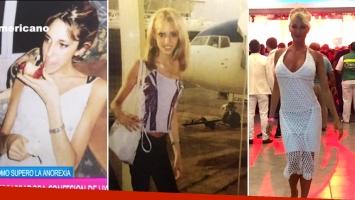 Vicky Xipolitakis en su periodo de anorexia nerviosa y ahora.  (Foto: Web)