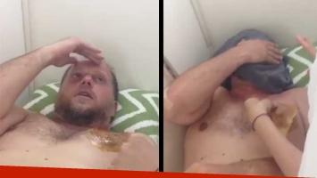 Cayetano se depiló con cera para pagar una apuesta. Foto: Twitter.
