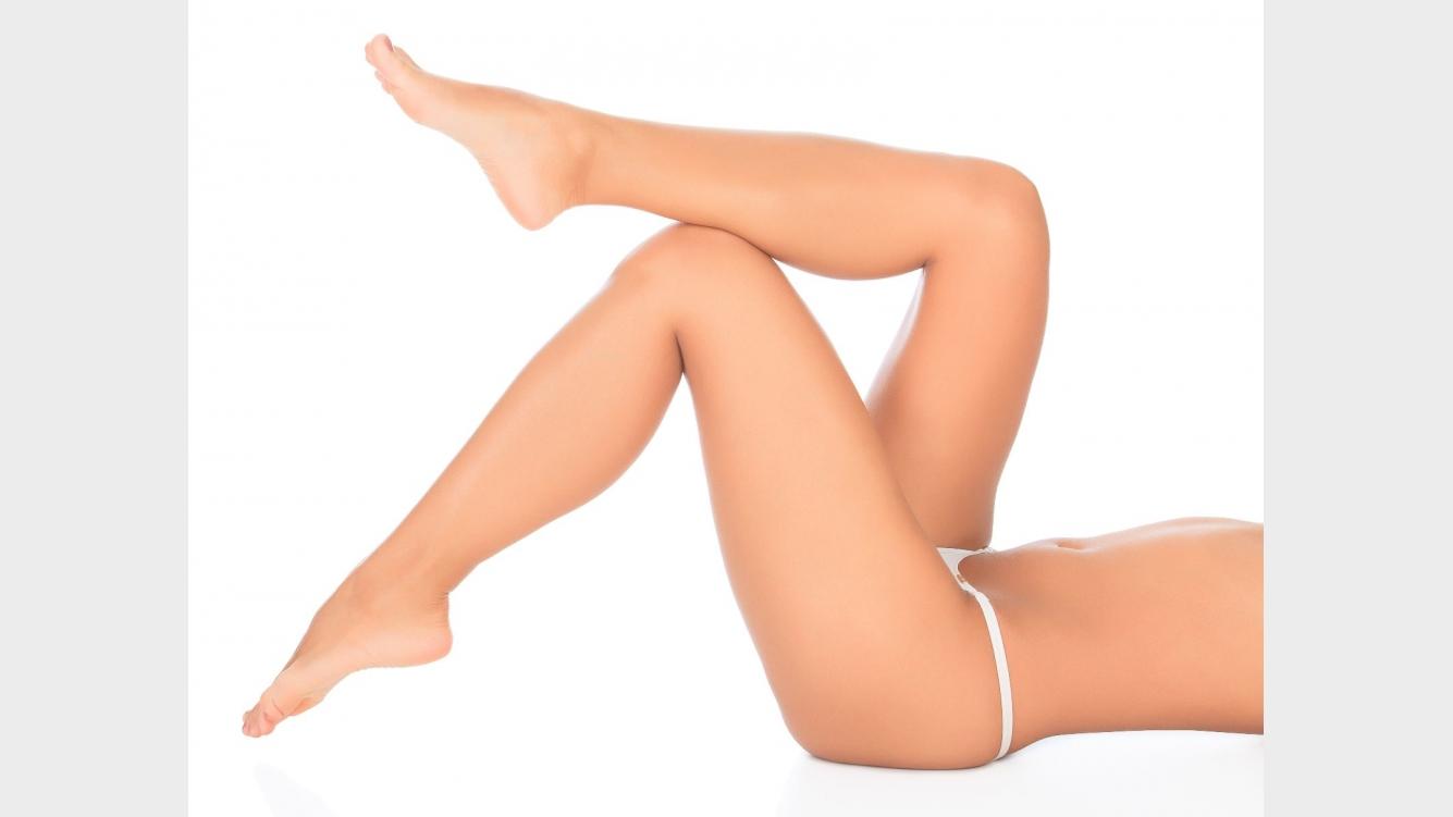 como eliminar las estrias rojas de las piernas