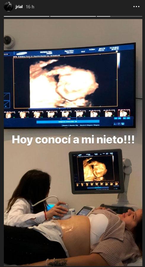 """Jorge Rial acompañó a su hija Morena a hacerse una ecografía: """"Conocí a mi nieto"""""""